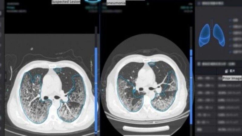 تشخیص فوری کرونا با یک دستگاه جدید